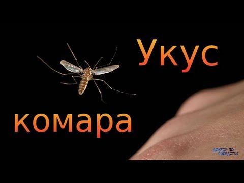 видео: ЛЕЧЕНИЕ КОМАРИНЫХ УКУСОВ / TREATMENT OF MOSQUITO BITES