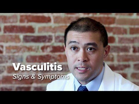 Vasculitis Signs & Symptoms | Johns Hopkins Medicine