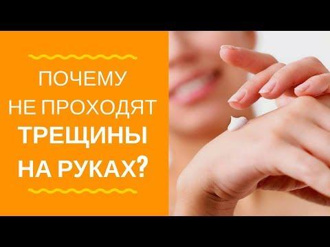 Трещины на руках и экзема! Мажете кремами? Почему не проходит!