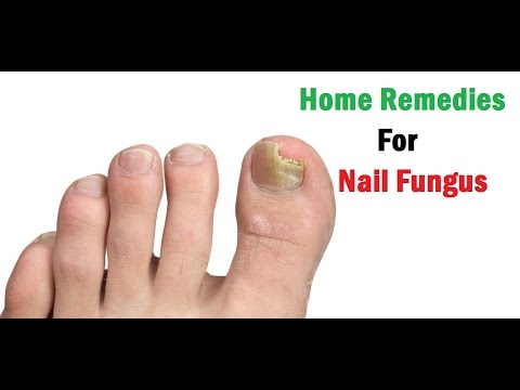 Home Remedies For Nail Fungus | Toenail Fungus Treatment