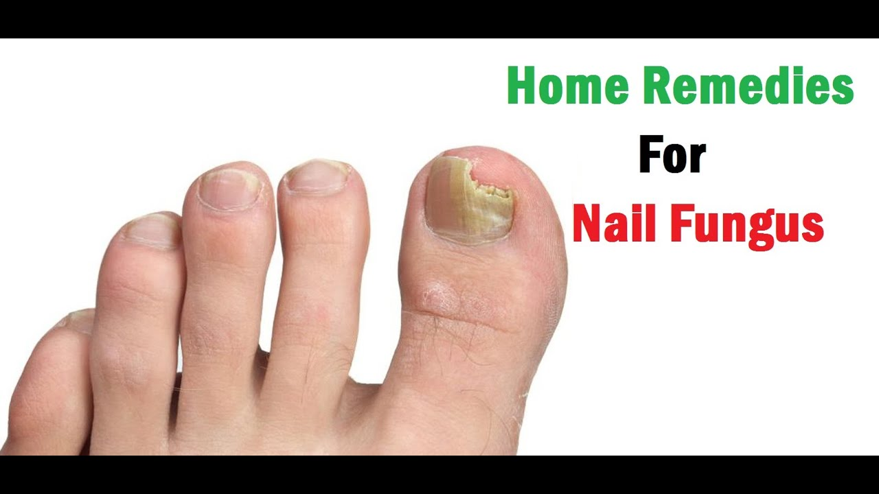 Nail fungus treatment with folk remedies helps