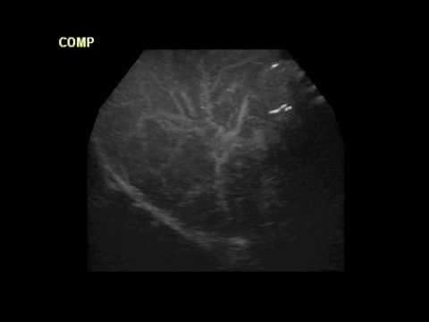 Ultra sound 3D angiography 6