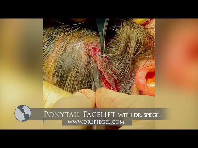 Ponytail Facelift