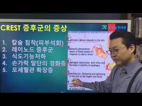 CENTROMERE 항체에 대하여(anti CENTROMERE antibody)