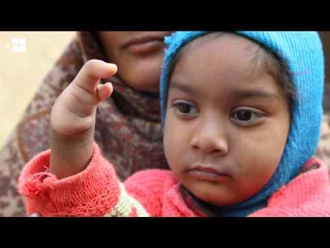 localidad india denuncia aumento de niños con malformaciones por