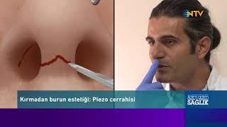 NTV 'de Piezo Burun estetiği