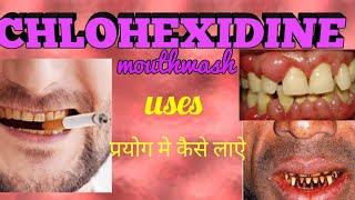 Chlorhexidine mouthwash हिन्दी मे Uses & complete information(in hindi/urdu)