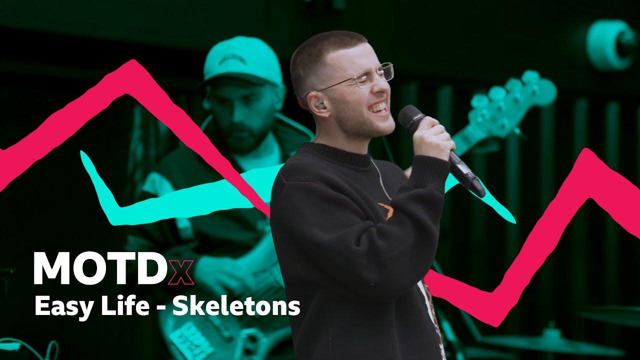 Easy Life –Skeletons (MOTDx)