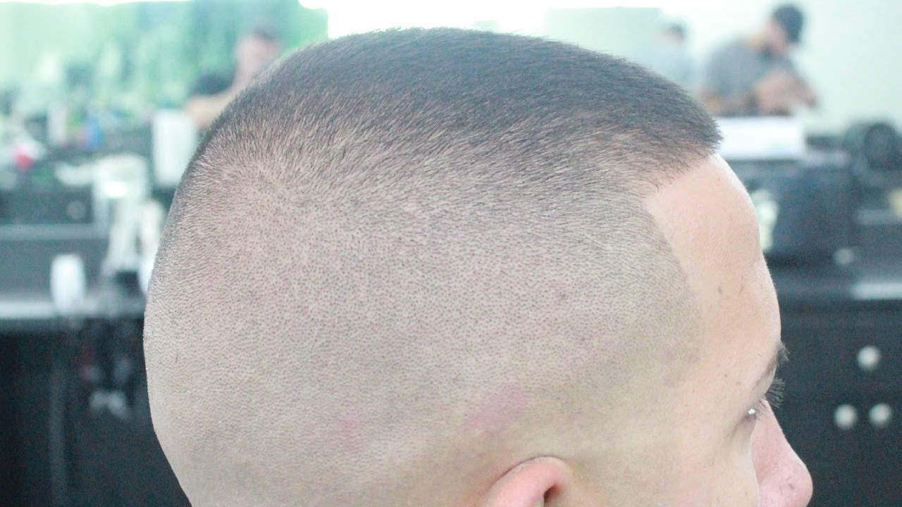 How To Bald Fade Haircut Tutorial Youtube
