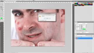 Как убрать прыщи с фотошопом?(Как убрать прыщи с фотографии в Фотошоп. Смотрим видео., 2012-06-14T14:19:15.000Z)