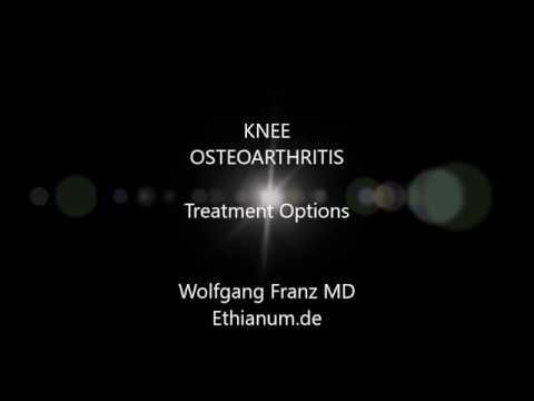Knee Osteoarthritis by Wolfgang Franz MD