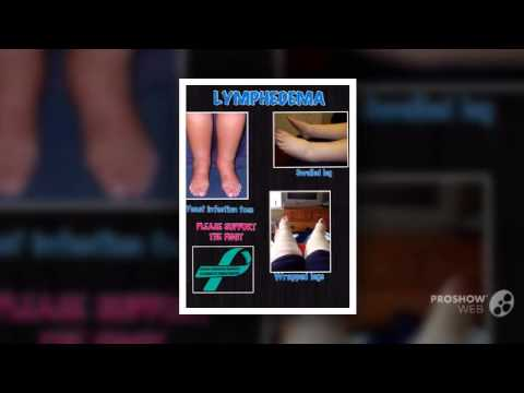 Find a Cure for Lymphedema - YouTube