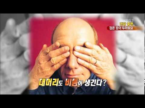 [건강충전] '검은 옷이 두렵다' 겨울철 비듬 관리법!