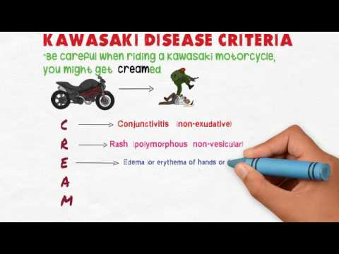 kawasaki disease diagnostic criteria mnemonic - youtube