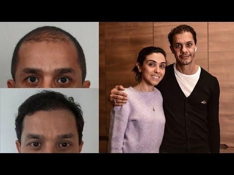 Tarek Who Made Hair Transplant Last Year Has Visited Estevien
