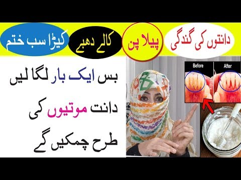 use-this-remedy-once-to-get-whitening-teeth-&-remove-dental-plaque-|-anam-home-remedy