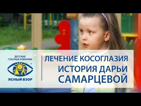 Косоглазие у ребёнка. История Дарьи Самарцевой