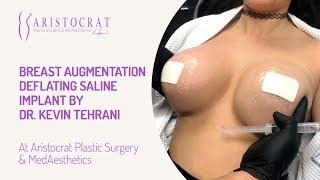 Breast Augmentation Deflating Saline Implant by Dr. Kevin Tehrani
