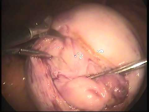 10 cm posterior wall fibroid youtube