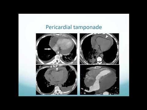 Pericardium and Cardiac masses