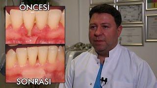 Diş Eti Çekilmesi Tedavisi, Diş Eti Zayıflığı Nedenleri, Bakımı. 2dk'da Öğren