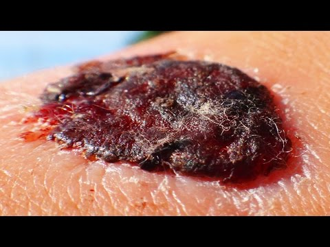 Peeling Scabs;  Worst Scab Removal!
