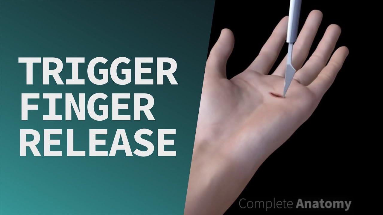 Trigger Finger Release
