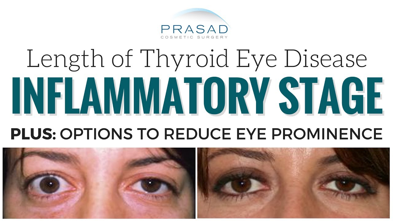 How Long Thyroid Eye Disease Graves Disease Lasts And Reducing