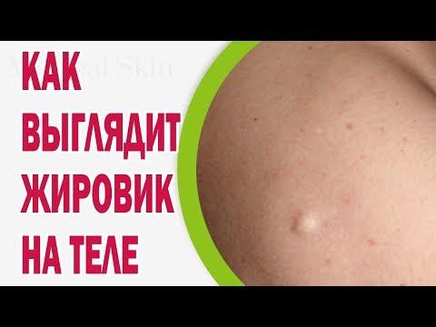 Как выглядит жировик на теле