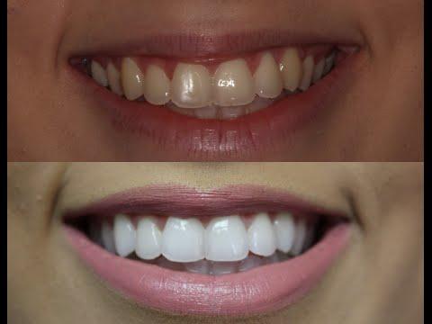Como Meus Dentes Ficaram Tao Brancos Youtube