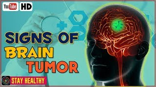 Gambar cover 8 Possible Signs of a Brain Tumor Not to Ignore