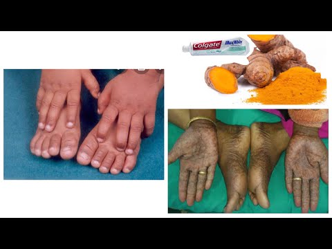 How To Get A Clearer Fairer Skin In 2 Days Home Remedy