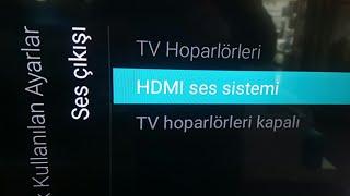 Philips tv ses sistemi bağlantı ayarı