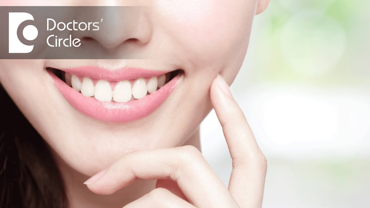 What Is The Best Teeth Whitening If You Have Two Front Caps Dr