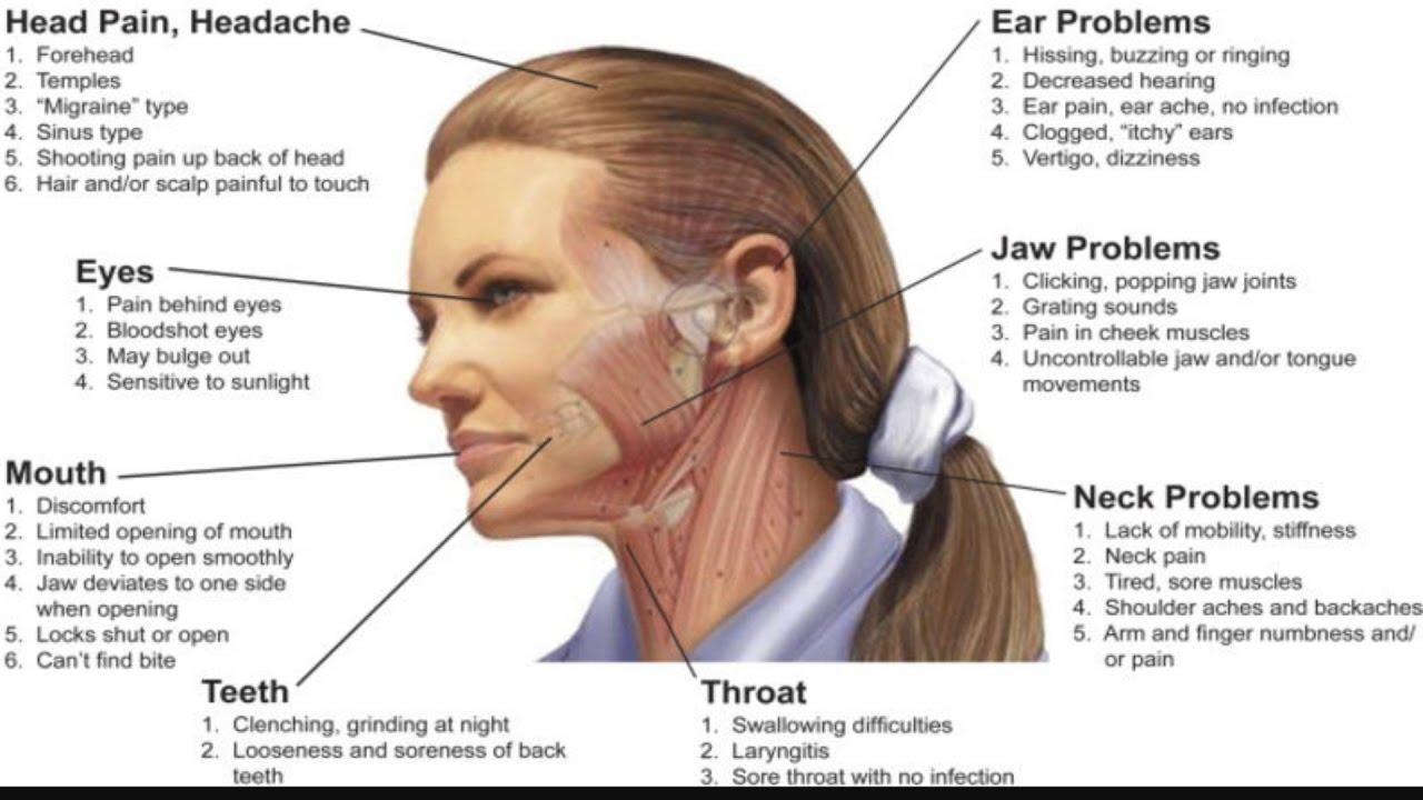 5 main types of headache