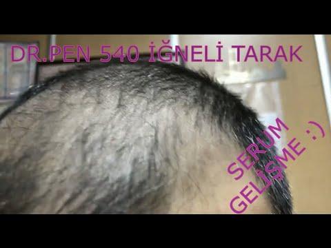 Dermaroller 540 Igneli Titanyum Sac Cikarma Taragi Saclosyonu