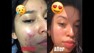 HOW TO GET RID OF ACNE! Skincare routine/giveaway !!
