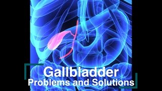 Gallbladder Problems and Solutions
