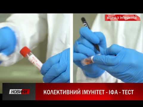 Третя Студія: Обласний лабораторний центр готується до ІФА-тестування