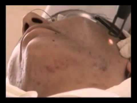 Spectra Laser Treatment For Acne - EuroMed Clinic Dubai