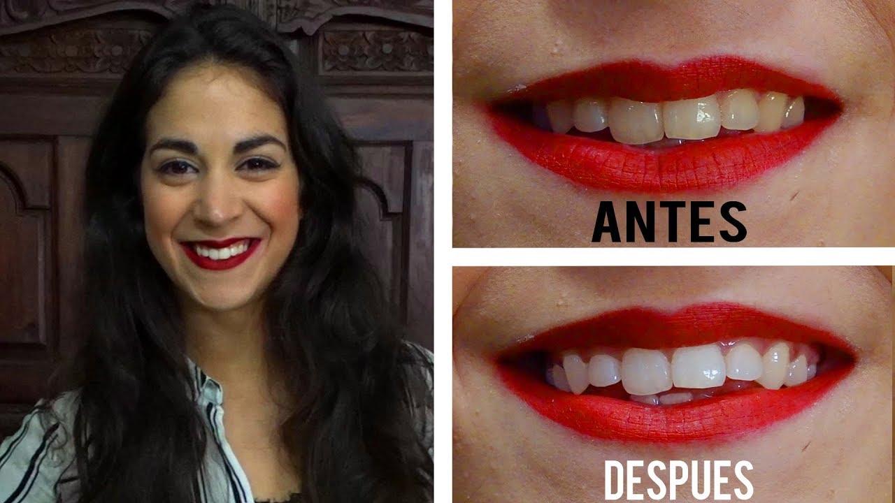 Como blanquear los dientes en casa r pidamente mejor metodo youtube - Como blanquear los dientes en casa ...