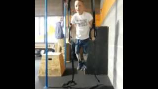 9 year old with Arthrogryposis