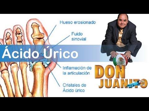 medicamentos para acido urico elevado acido urico pdf 2012 urea y acido urico en sangre