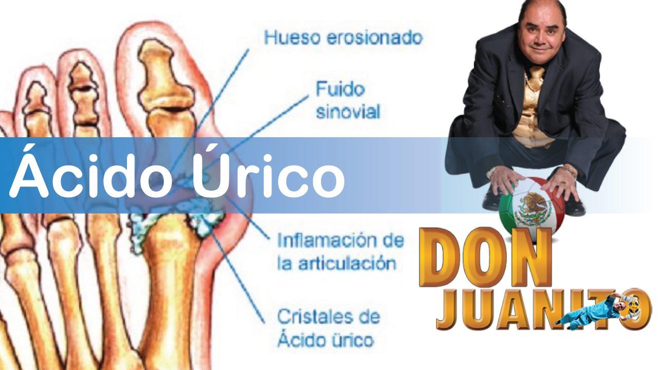 Acido Urico Remedios Para Bajar El ácido úrico Rapido Como Bajar Y Eliminar El Acido Urico Youtube