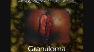 Krueger-GRANULOMA INGUINAL - BIRONGO