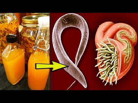 Powerful Remedies That Clean Up Body From Parasites and Reduces Fat Deposition