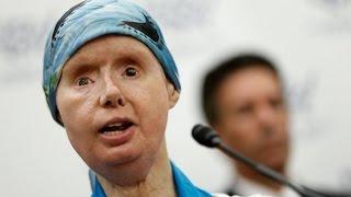 10 Most Shocking Face Transplants Ever Performed