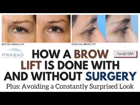 Brow Lifting with and without Surgery, and Importance of Avoiding a Surprised Look