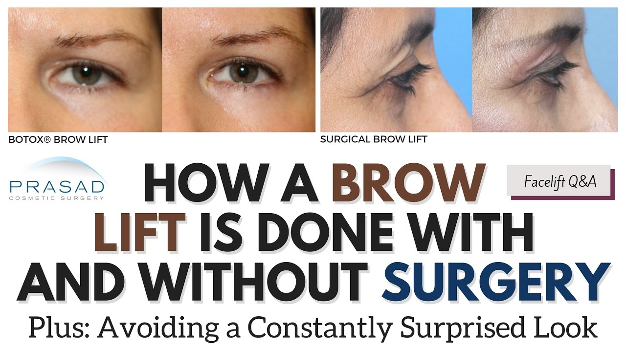 Brow Lifting With And Without Surgery And Importance Of Avoiding A