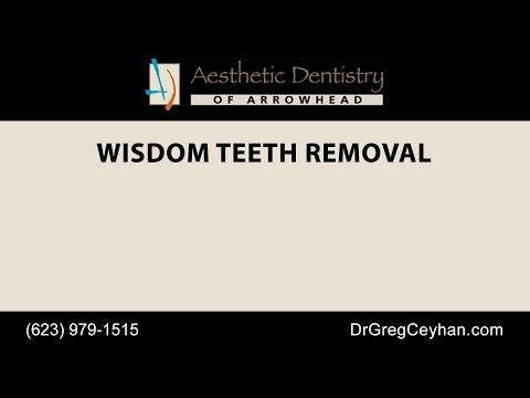 Glendale Wisdom Teeth Removal | Aesthetic Dentistry of Arrowhead